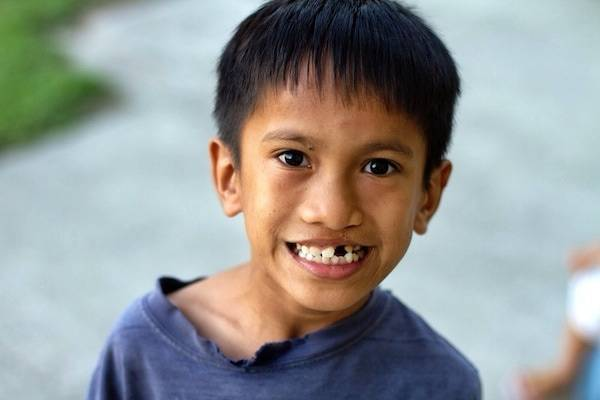 Young boy with a missing tooth.